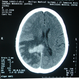 C.T.Scan of Brain dated 31.12.2008