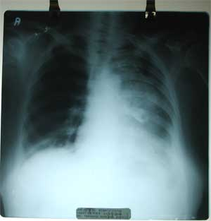 Chest X-ray dated 21.08.2008