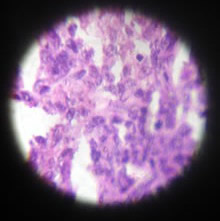 histopathology